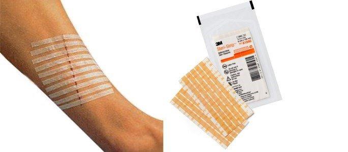 steri strip sutura adesiva